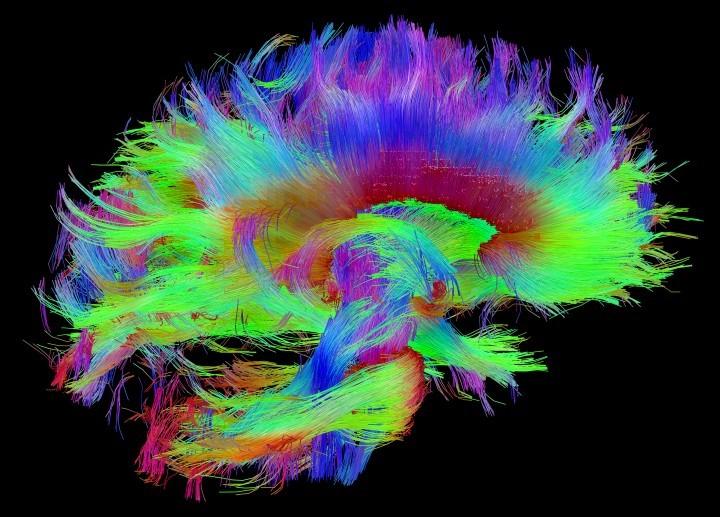 Neuroscience 4